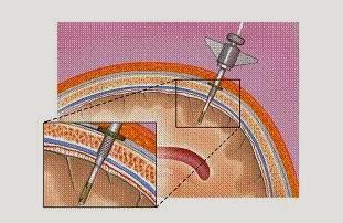 Как можно измерить внутричерепного давления
