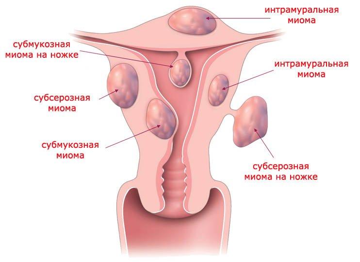Удаление миомы матки как проходит операция и восстановление