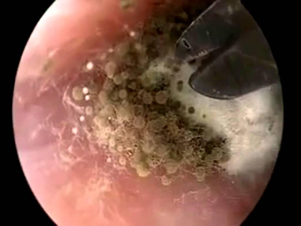 Сколько лечат грибок в ушах